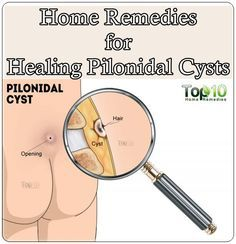 These effective home remedies for healing pilonidal cysts which is chronic type of skin infection that occurs around the crease region of the buttocks. Alt