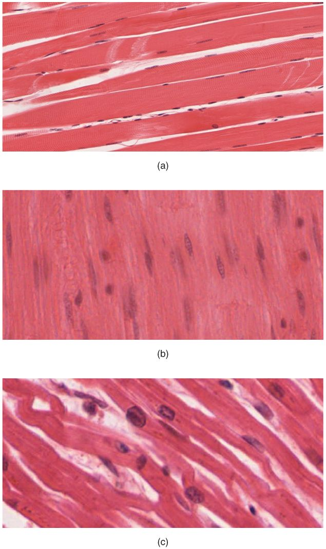 The body contains three types of muscle tissue: (a) skeletal muscle, (b) smooth muscle, and (c) cardiac muscle. (Same magnification)
