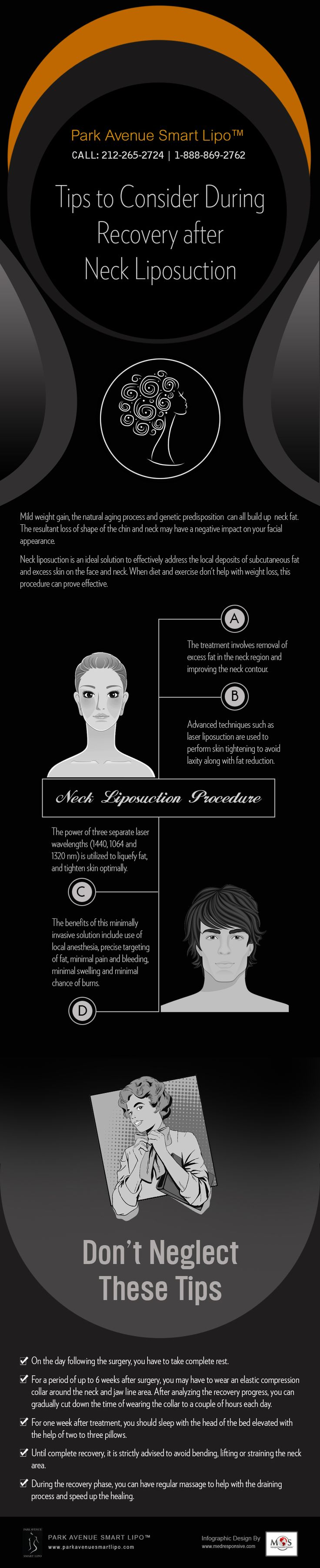 Tips to Consider During Recovery after Neck Liposuction