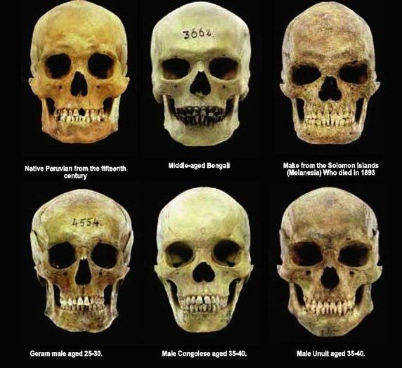 Prompt, where Skull structures different races think