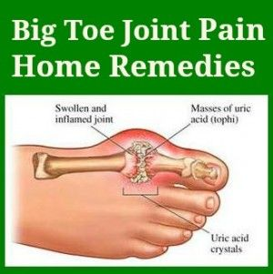 Before popping a pill, look for other alternatives to ease your big toe joint pain. Sometimes, remedies are just found inside your kitchen. With proper care for your feet and a little help from your kitchen herbs and oils, these remedies will keep you on your toes.