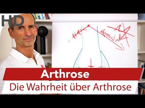 Die Arthrose-Lüge - Warum so viele Menschen umsonst leiden - Liebscher & Bracht