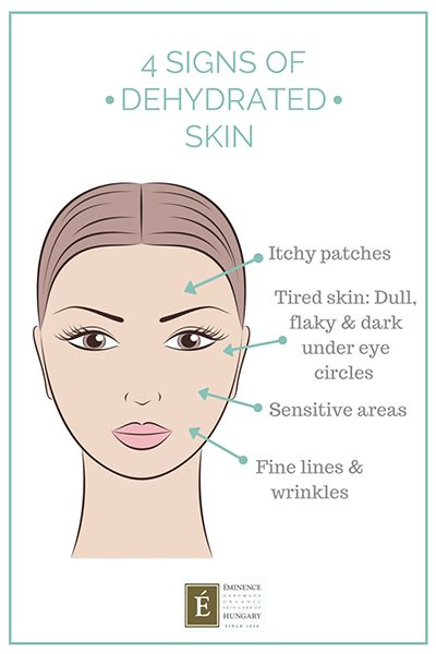 signs of dry skin