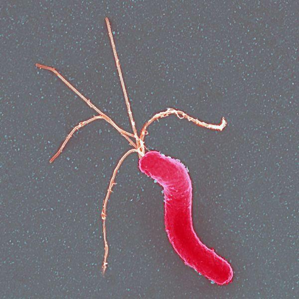 Helicobacter pylori – одна из самых известных желудочно-кишечных бактерий. (Фото: AJC1 / Flicjr.com.)