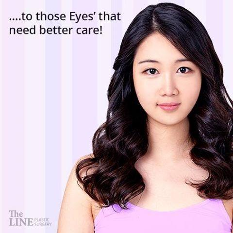 #double_eyelid_surgery #eye_correction_surgery #korean_plastic_surgery #plastic_surgery_korea