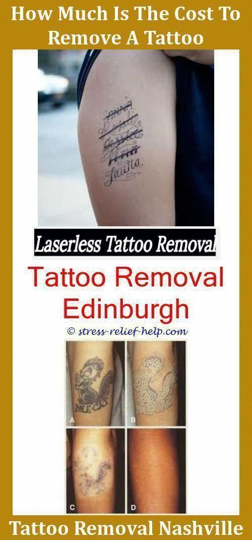 Is Tattoo Removal Safe Can You Tattoo Again After Removal Can I ...