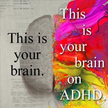 ADHD -  I'm confused, this image makes it look like a good thing ??? Looking at this picture, I would definitely want the brain on ADHD :)