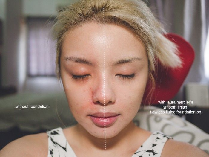 with/without foundation, no concealer   Aesthetically Driven ...