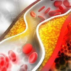 Cholestérol – le grand bluff
