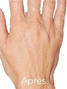 Radiesse de Merz pour un rajeunissement des mains