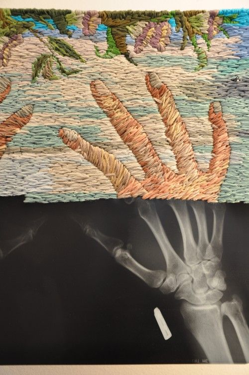 Embroidered X-Rays -- Philadelphia-based artist Matthew Cox combines x-ray images and embroidery to show a clinical, scientific world below a colorful, artistic surface