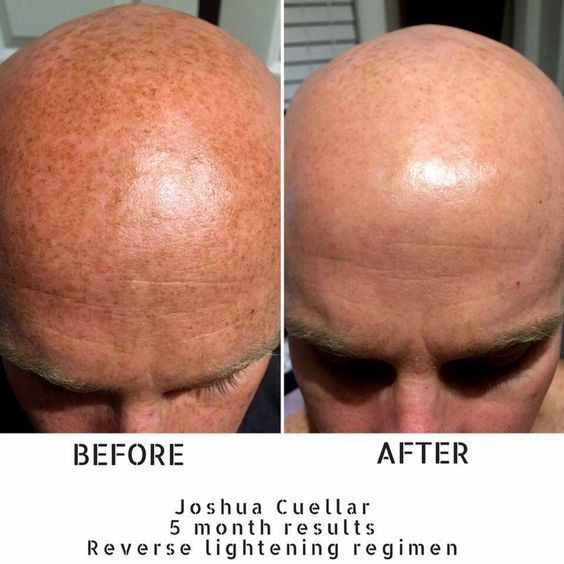 So check this out... this is a fellow consultant, Brittany Cueller's husband, Josh. From Josh: 'When my wife started with Rodan + Fields and asked if I would use the products, I was skeptical to say the least. But I can now say they're not only clinically-proven, but Cuellar tested and approved! But for me this is much more than skincare. I've loved watching my wife spark again as we have found an outlet in a crazy season of life.
