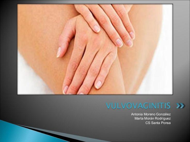Vulvovaginitis by Docencia Calvià via slideshare