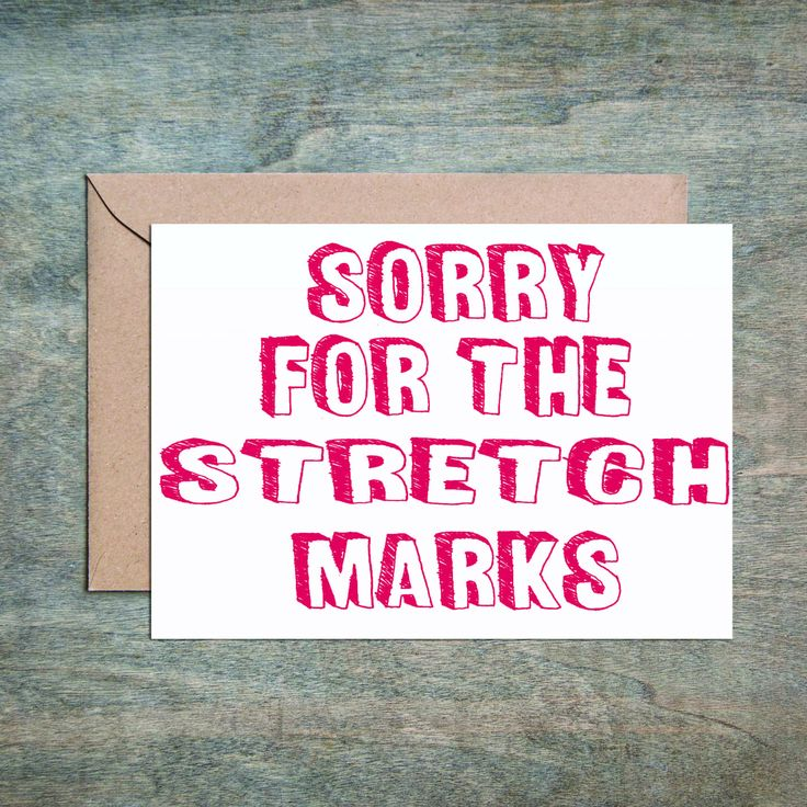Stretch Marks. Funny Mother's Day Card. Funny Mother Birthday Card. Birthday Card for Mom.