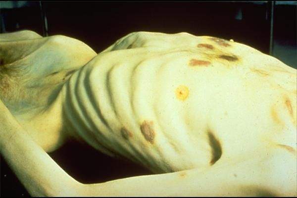 cachexia  Cachexia  Cachexia in cancer patients. Weak/emaciated. general ill health