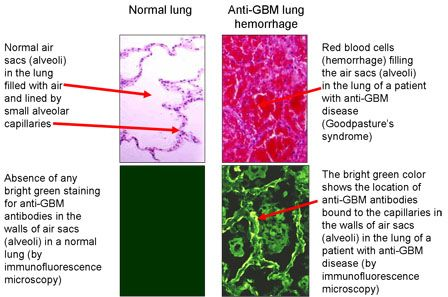 goodpasture syndrome - Google Search