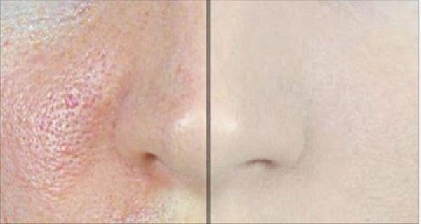 Cómo hacer que los poros de la piel DESAPAREZCAN AL INSTANTE con sólo un ingrediente!