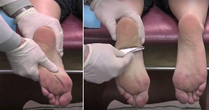 Hendes fødder og hæle gjorde ondt døgnet rundt – se nu ekspertens hurtige trick til at få smerten til at gå væk