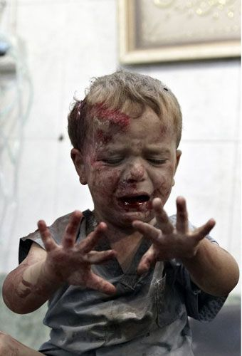 It makes me furious...children and women ..the true victims in all wars,  A seriously wounded boy waits to be treated in Aleppo, in one of the city's last standing hospitals
