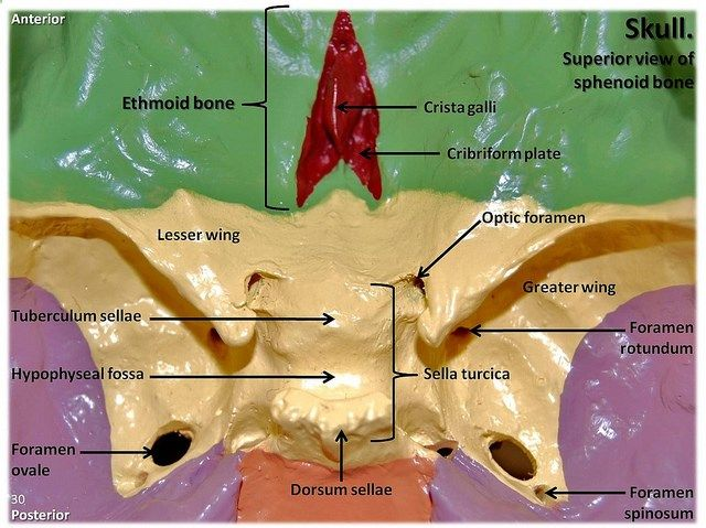 skull landmarks | multi-colored skull, superior view of ethmoid, Human Body
