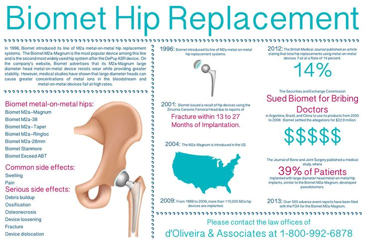 Hip pain in runners ! One of the most common running injuries.
