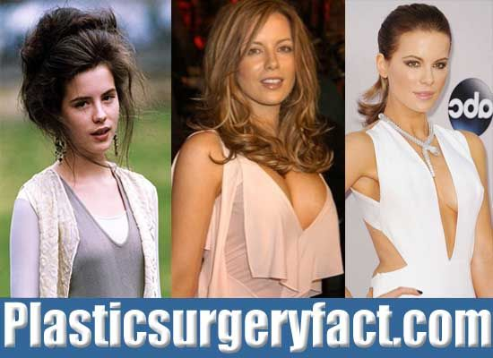 Kate Beckinsale Boob Job Before and After | http://plasticsurgeryfact.com/kate-beckinsale-plastic-surgery-before-and-after/