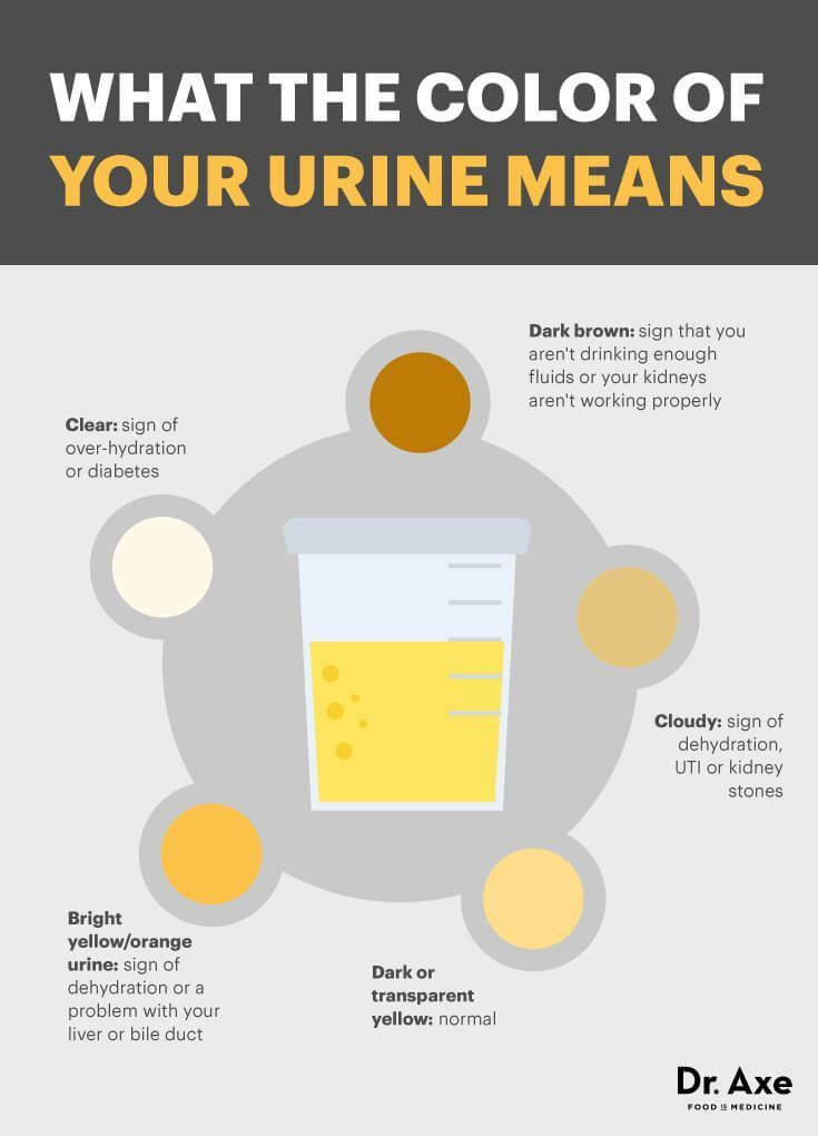 Cloudy Kidney Infection Urine
