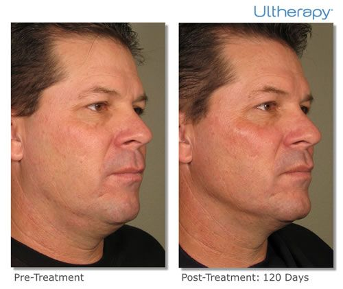 Post Treatment result after 120 days