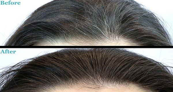This powerful mixture successfully eliminates white hair. In addition, it is a potent remedy that also improves skin health and vision. In order to prepare it and feel its benefits, you will need: 200 grams of flaxseed oil 3 cloves garlic (small) 4 lemons 1 kilogram of honey Method of preparation: Peel the lemons, and …