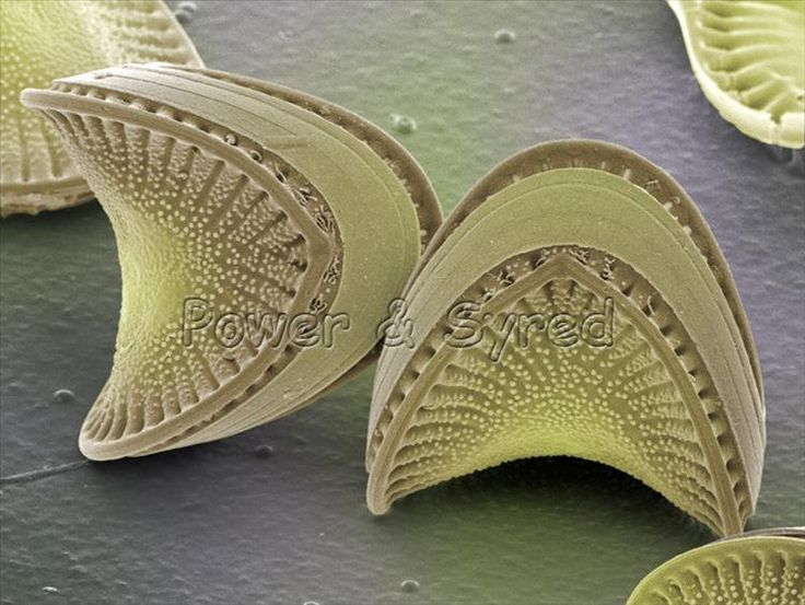 Microscopic: Diatom frustules (Campylodiscus sp.) Some scientists believe this is the true shape of the Universe.