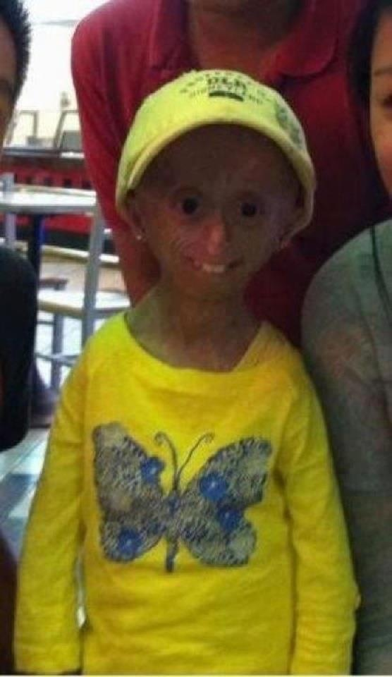 """""""like"""" and 'repin' if you think she is beautiful!   She is breathtaking to me. :)    13-year-old Hana Hwang suffers from an extremely rare genetic condition that causes accelerated aging."""