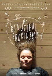 My Beautiful Broken Brain Poster
