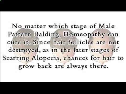 Male Pattern Balding: How to Cure Male Pattern Balding - How To Stop Hair Loss And Regrow It The Natural Way! CLICK HERE! #hair #hairloss #hairlosswomen #hairtreatment Get our Homeopathic treatment for Androgenetic Alopecia (Male Pattern Balding) at Buy Homeopathy at Male Pattern Balding, better known as Androgenetic Alopecia, is the most common type... - #HairLoss