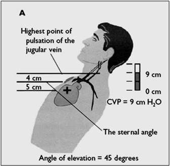 Normal venous distention is <4 cm. normally when a person lies supine vein distention occurs, however when the bed is elevated 45 degrees the level of distention falls to about 3-4 cm above the clavicle or above the sternal angle. Venous distention provides info relating to the volume & pressure of the venous blood in the right heart (if greater suspect Rt ventricular failure)