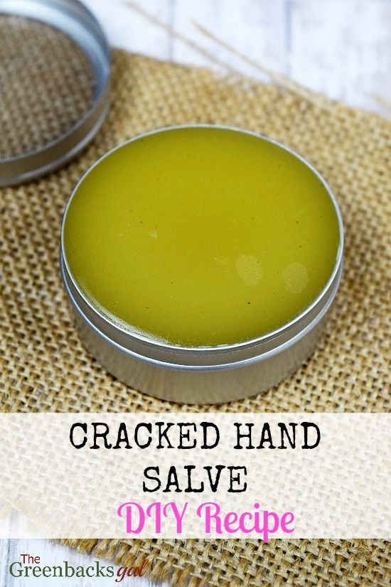 How to Make DIY Cracked Hand Salve in 5 Minutes. This recipe makes great gifts. Works on feet too!