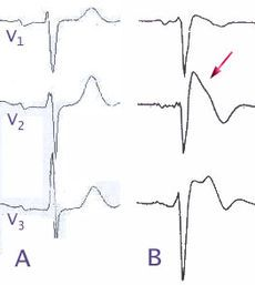 Brugada syndrome - Wikipedia, the free encyclopedia