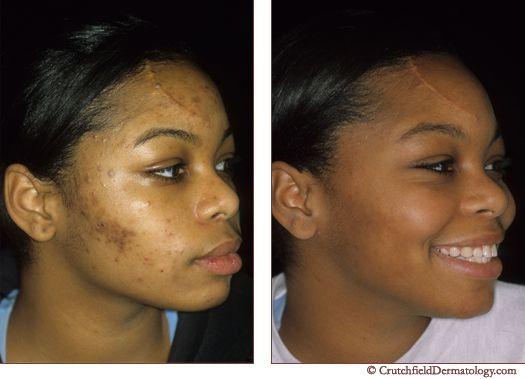 7 Best Acne Scars Amp Skin Blemishes Images On Pinterest