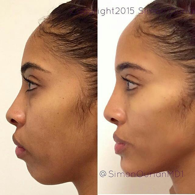 Treatment: Non-Surgical Cheek and chin Augmentation Purpose: Augment and lift the cheeks and chin How it works: Using Voluma injections. Results: Immediate to 2 weeks ✏ Note: Individual results may vary