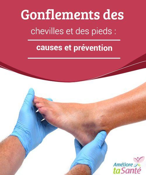 Gonflements des chevilles et des pieds : causes et prévention   Vous souffrez souvent de gonflements des chevilles et des pieds ? Venez découvrir nos conseils pour les soigner et les prévenir.