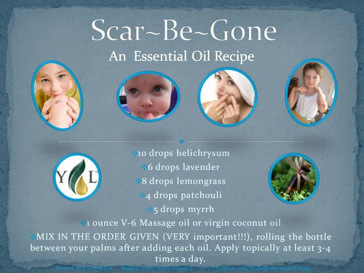 Essential Oil Alternatives: Scar be gone. This statement has not been evaluated by the FDA. This product is not intended to diagnose, treat, cure or prevent disease.