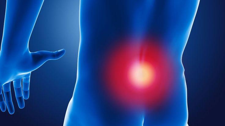 Sciatica SOS Book - Best natural treatment for sciatica