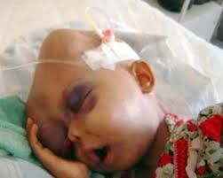 Leukemia is the commonest form of childhood cancer. Although leukemia occurs commonly in children and young adults, it affects people above the age group of 50 years too.