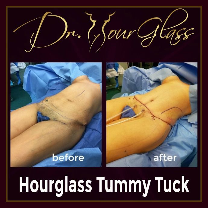 Most patients who want to undergo the Hourglass Tummy Tuck procedure are concern about the excess fat, excess skin and stretchmarks on their abdomen. Another amazing result here of the Hourglass Tummy Tuck procedure: