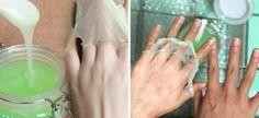 A kezek szépségének megőrzése nem könnyű, mert nagyon igénybe vannak véve. A kezeidet könnyedén széppé varázsolhatod a házi módszerrel, amit most mutatunk. Csökkenti a ráncokat, szebbé teszi a bőrt, hidratálja és még az öregségi foltokat is halványítja. Amire szükséged van: 1 evőkanál méz 1 evőkanál joghurt 1 evőkanál citromlé A[...]