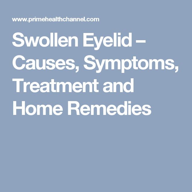 Swollen Eyelid – Causes, Symptoms, Treatment and Home Remedies