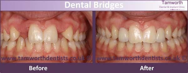 Jazzy Dental Bridge Cleaning Teethwhiteningstrips