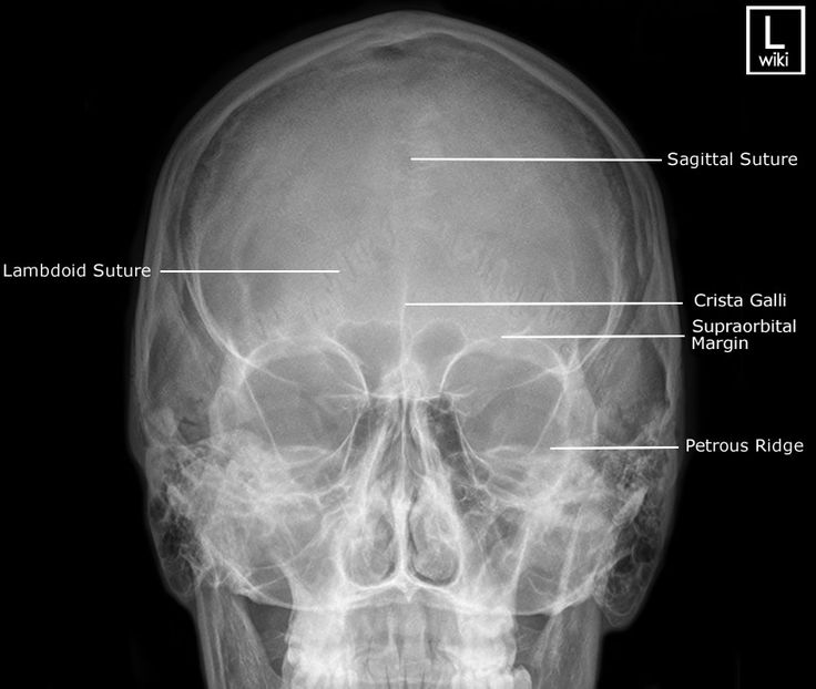 Skull - PA 15 (Caldwell) | Radiographic Anatomy ...
