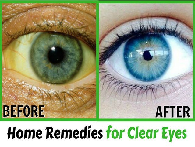 Eye Wash Solution Home Remedy | Home Remedies for Clear Eyes https://www.youtube.com/watch?v=oIHiFPSRJcg  #love  #instagood #photooftheday #fashion #beautiful #happy #cute #tbt #like4like #followme #picoftheday #follow #me  #selfie #summer  #art #instadaily #friends  #repost #nature  #girl