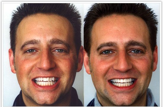 how to change face in picture
