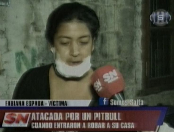 """Mujer atacada por un pitbull: """"Sentí que me desgarraba la cara"""": Fue sorprendida por dos ladrones que le quisieron robar una máquina de…"""